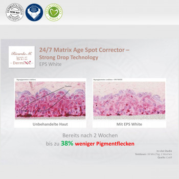 24/7 Matrix Age Spot Corrector, Strong Drops Technology, Unterschied, Verbesserung
