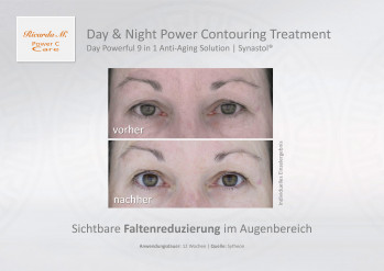 Day & Night Power Contouring Treatment, Gesichtspflege, Day Powerful 9 in 1 Anti-Aging Solution &, Vergleich, Wirkung, Verbesserung
