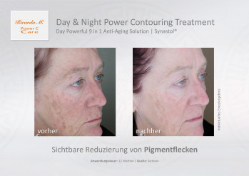 Day & Night Power Contouring Treatment, Gesichtspflege, Night Deep Contouring Solution, Eternaline, Wirkung, Verbesserung, Vergleich